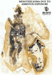 Mesothelioma Lung